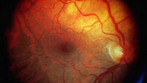 Stem Cell transplants may restore sight to the blind